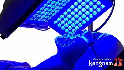 trị mụn bằng công nghệ oxy led
