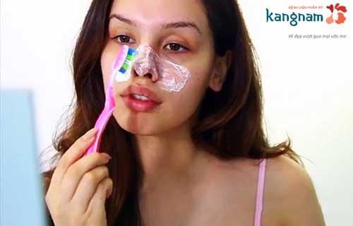 Cách trị mụn cám bằng kem đánh răng và bàn chải