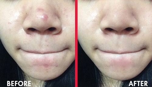 cách chữa mụn bọc ở mũi bị chai