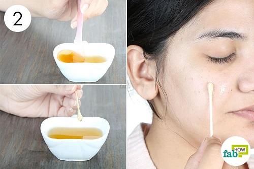 trị mụn bọc ở mũi bằng mật ong