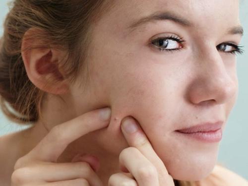 cách trị mụn cám ở mũi
